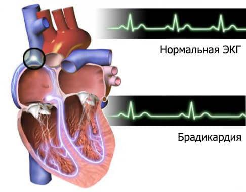 Биение сердца при брадикардии